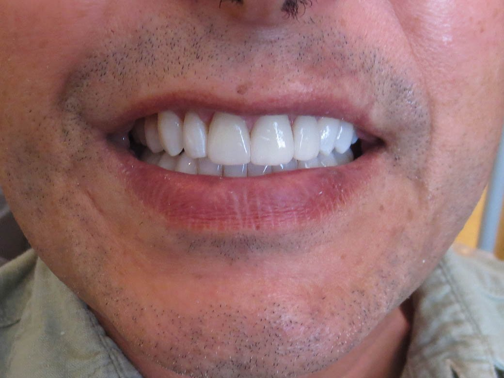 Crown and Whitening After #1
