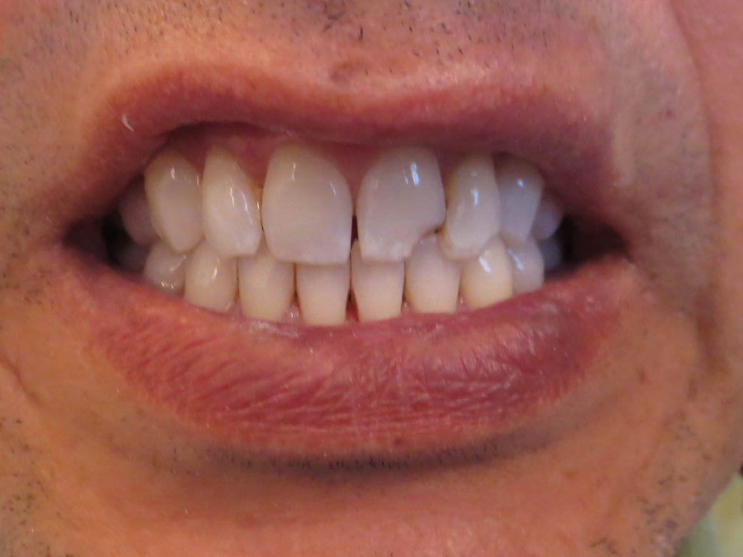Crown and Whitening Before #1